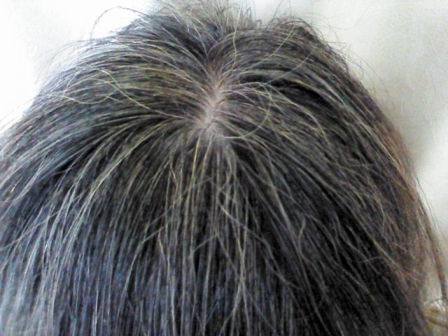 万田酵素と白髪